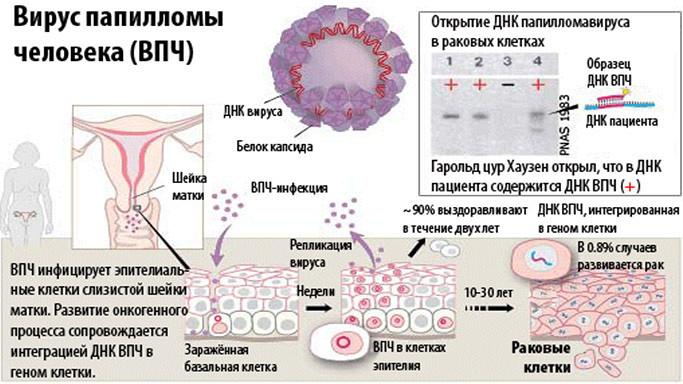 ВПЧ и ее развитие
