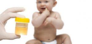 анализ мочи новорожденного