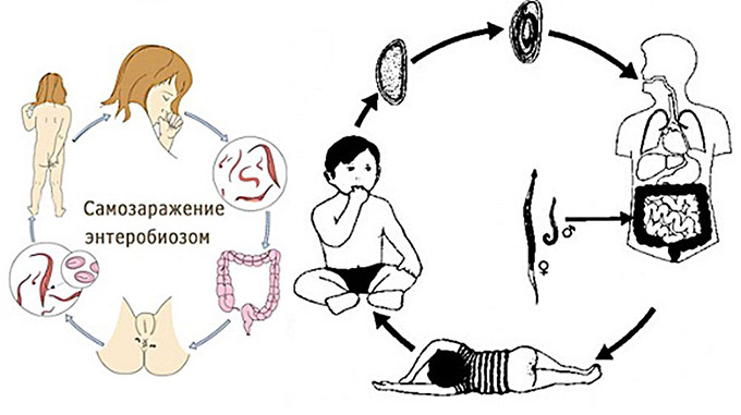 процесс заражения энтеробиозом