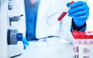 изучение анализа крови в лаборатории