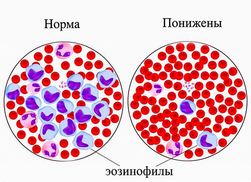 рзличные уровни эозинофилов