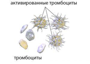 тромбоциты стандартрные и активированные