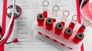 анализы при болях в суставах