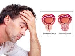 признаки простатита у мужчины