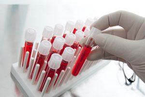 сдданный анализ крови на сахар