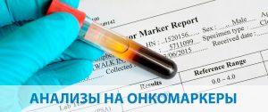 анализ крови на онкомаркереры и его сдача