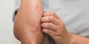 проявление аллергии на кошку
