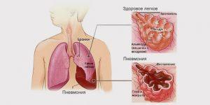 симптомы пневмонии