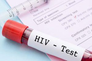 пробирка с анализом крови на СПИД