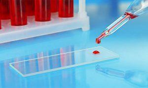 сданный ферритин анализ