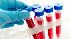 пробирка с анализом крови