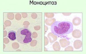 моноцитоз под микроскопом