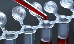 кровь в пробирке для анализа