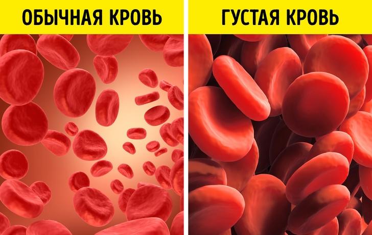 на фото обычная и густая кровь