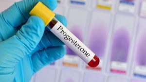 пробирка с анализом крови на прогестерон