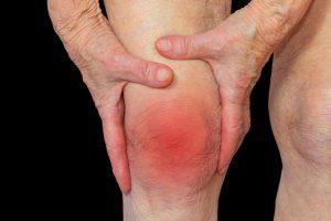 боли в коленном суставе у человеках