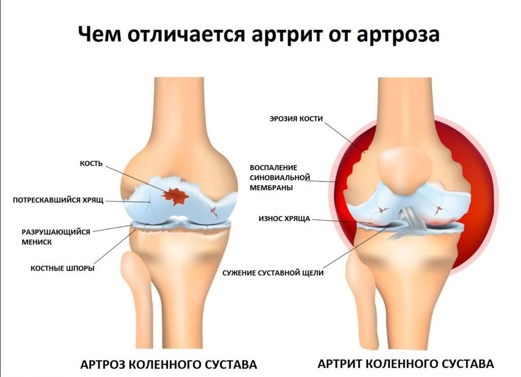 основные отличия артрита и артроза