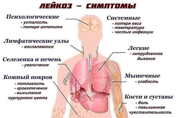 основные симптомы лейкоза