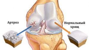 нарушение в коленном суставе при артрозе