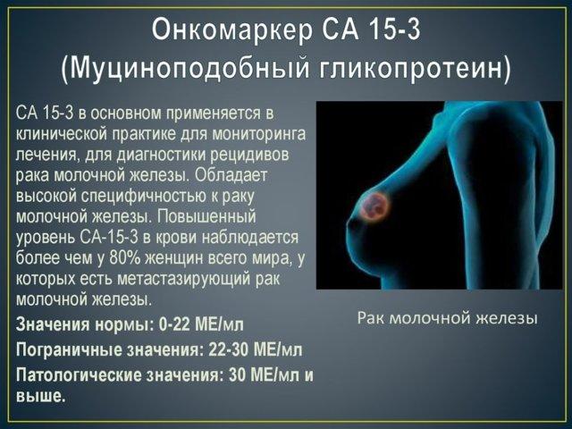 онкомаркер СА 15-3 и его значение