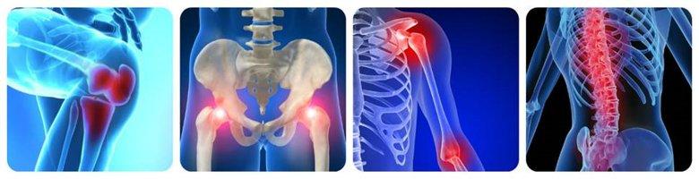 возможные расположения болей в суставах
