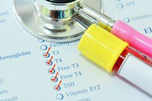 анализ крови на изучение гормонов ЩЖ