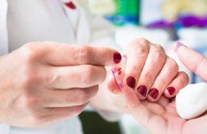 гипохромия в общем анализе крови и ее определение
