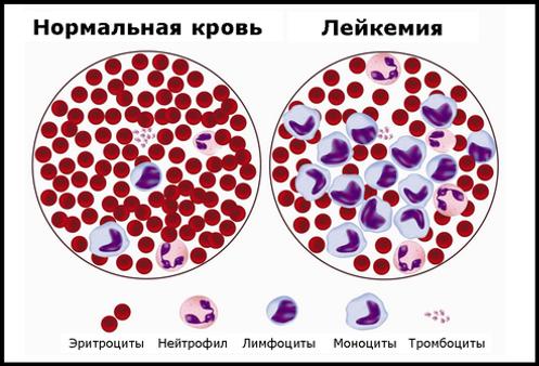 фото нормальной крови и лейкемии