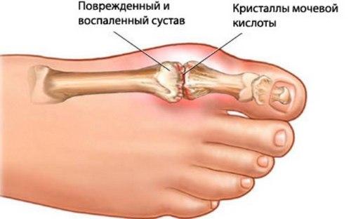 кристаллы мочевой кислоты в пораженном суставе