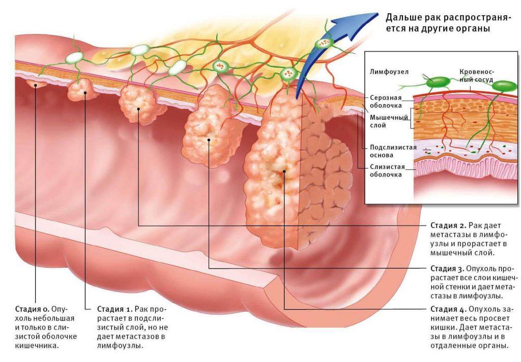 рак кишечника и его развитие