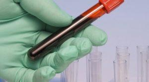 признаки лейкоза по анализу крови