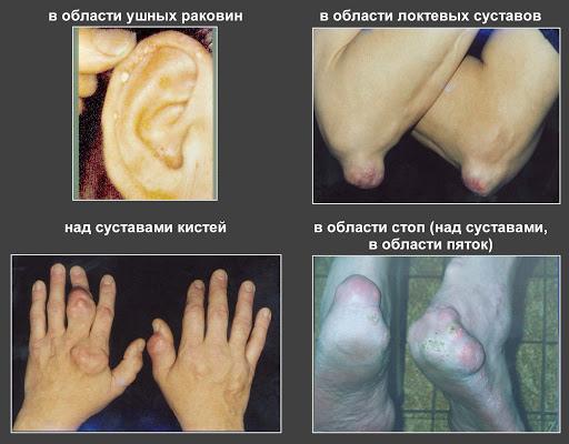 части тела пораженные подагрой