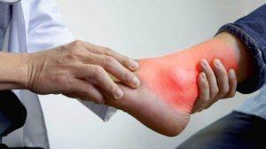 боль в суставах ног при подагре