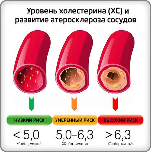 уровень холестерина и атеросклероз