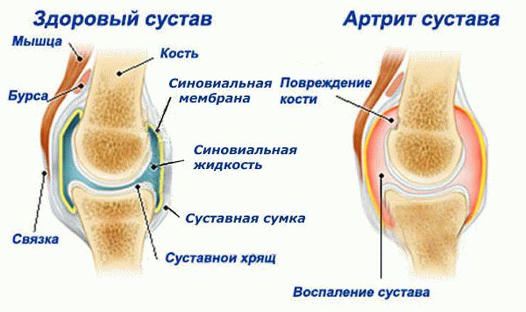 нарушение подвижности в суставах при артрите