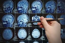врач изучает МРТ