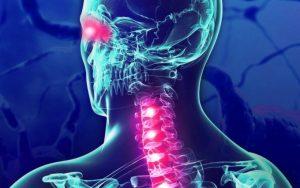 локализация нарушений при рассеянном склерозе