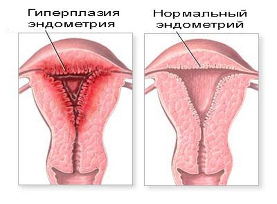 гиперплазия эндометрия и ее изображение