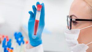 врач изучает анализ на аллергию на белок