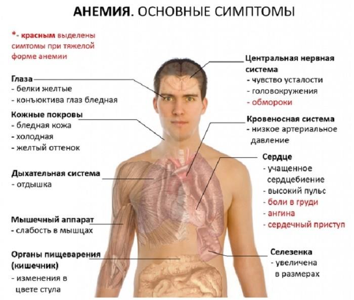 анемия и ее симптомы