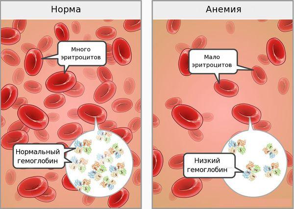 кровь под микроскопом при анемии и у здорового челоека