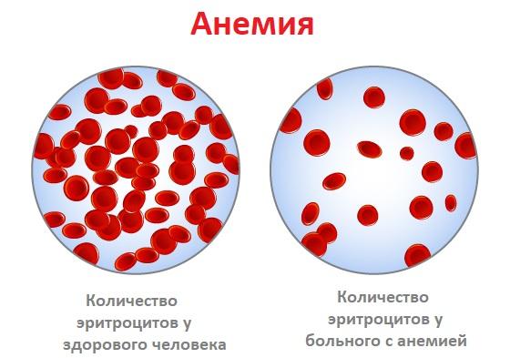 кровь при анемии и у здорового пациента