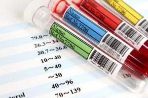 анализ крови в нескольких пробирках